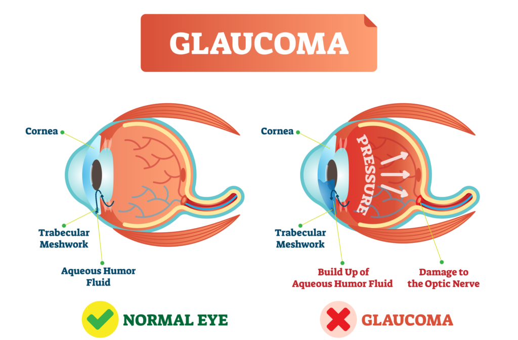 Diagram showing how intraocular pressure damages the optic nerve during glaucoma