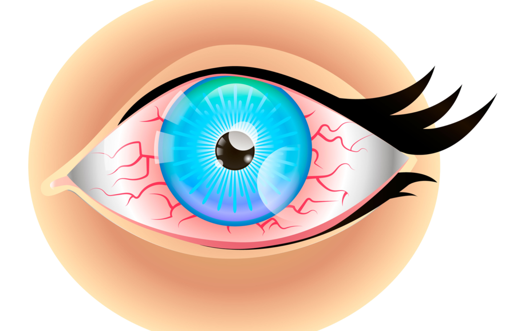 Rendering of dry eye with inflamed red blood vessels