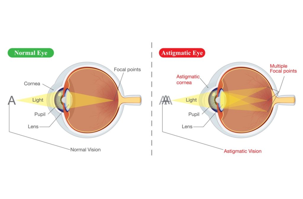 Illustration of normal eye on the left and an eye on the right with astigmatism.