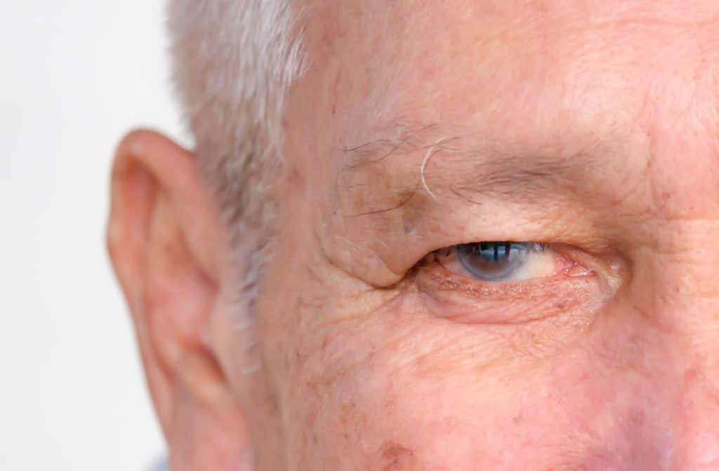 Close up of older gentleman with glaucoma present in his right eye